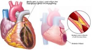 heart4-1.jpg.pagespeed.ce.6YNGFGkOng